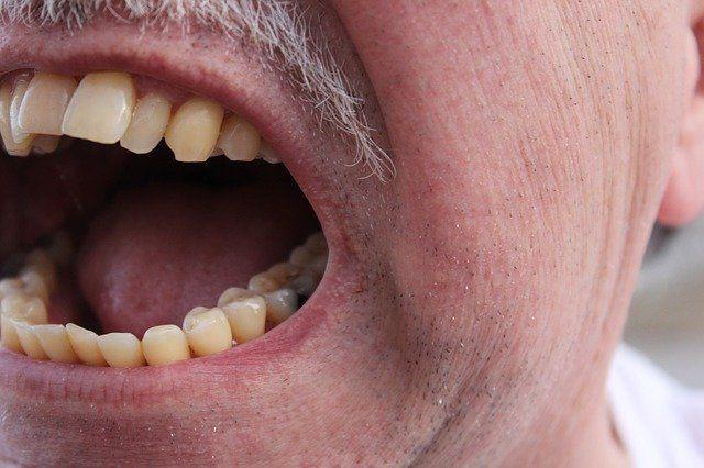 Gesicht eines Mannes (nur Mund und seitliche Wange mit halbem Ohr). Der Mann schreit. Ordentliches Gebiss.